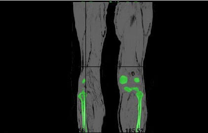3D printer_bone implant2