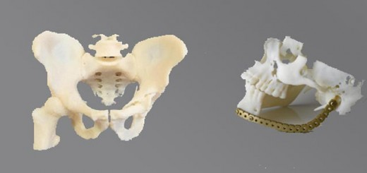 3D printer_bone implant_banner