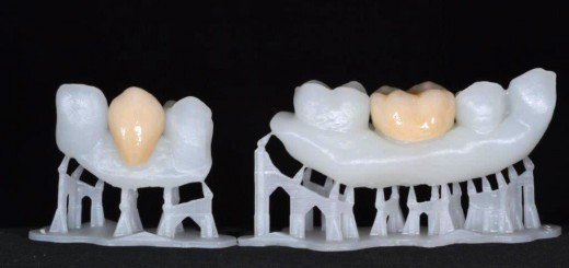 Douw_Formlabs_3_Glazed_crowns