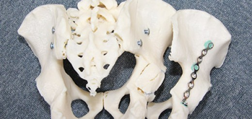 3d_printed_pelvic_bone_model_for_pre_surgury_planning