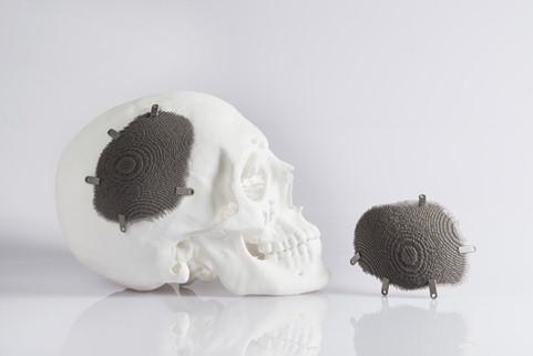 Medical-EOS-Alphaform-Cranial-Implant-Scull-content