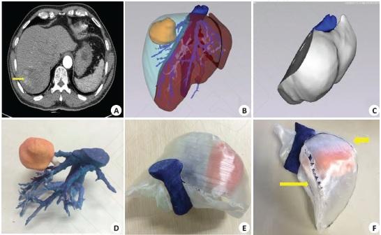 3D打印在肝脏肿瘤手术中的应用
