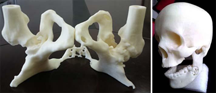 左: 骨肿瘤的患者骨盆3D打印模型; 右:肿瘤患者颅骨与下颚骨3D打印模型