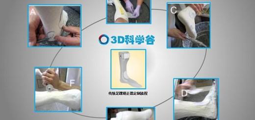 传统足踝矫正器定制流程