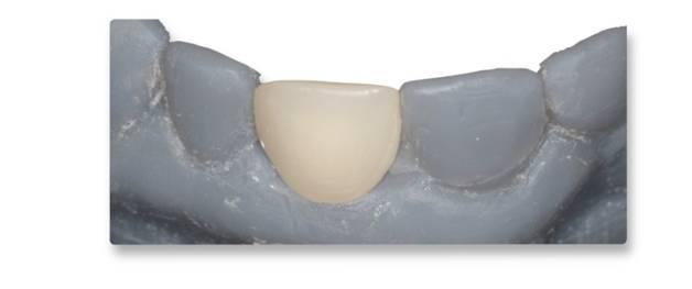 dental_7