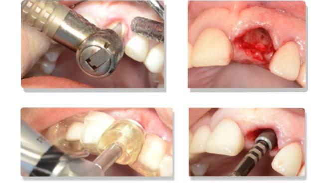 dental_8