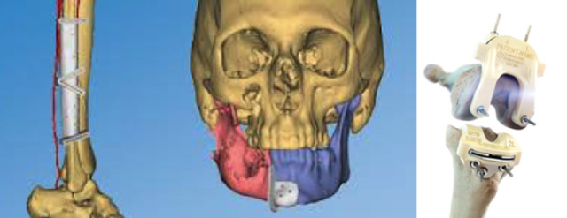 depuy_synthes-3d-print-implant