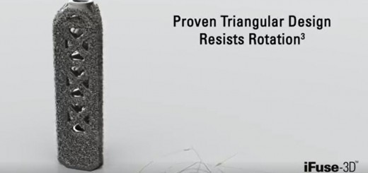 SI-BONE 3D printed implant cover