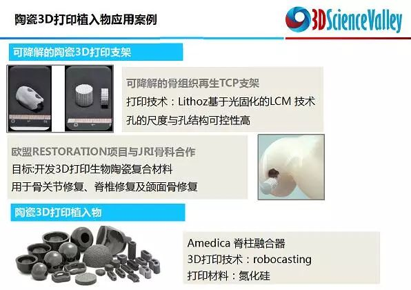 ceramic_3dprint_implant_3