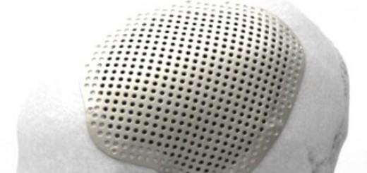 Renishaw CMF implant