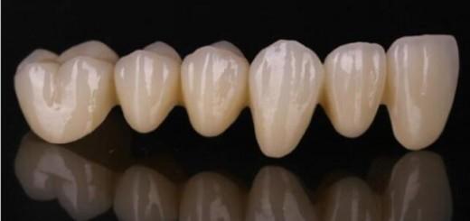 porimy ceramics crown 3D printing