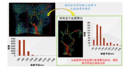 天津三英精密仪器解释X射线三维显微CT与3D打印的联系