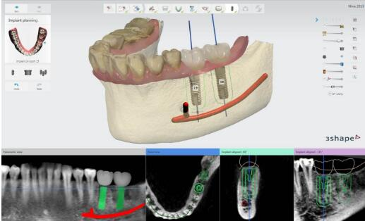 3Shape Implant Studio
