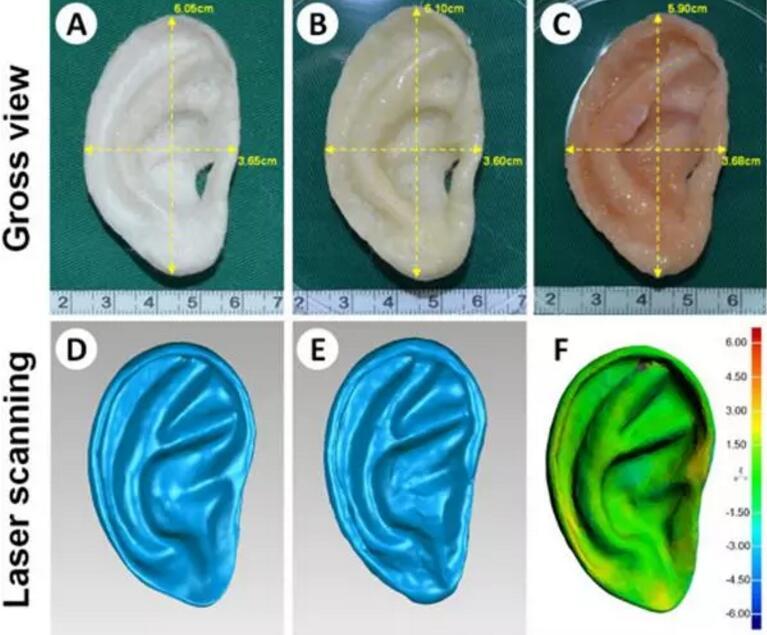 中国科学家用软骨细胞和3D打印技术为小耳症儿童培育新耳朵