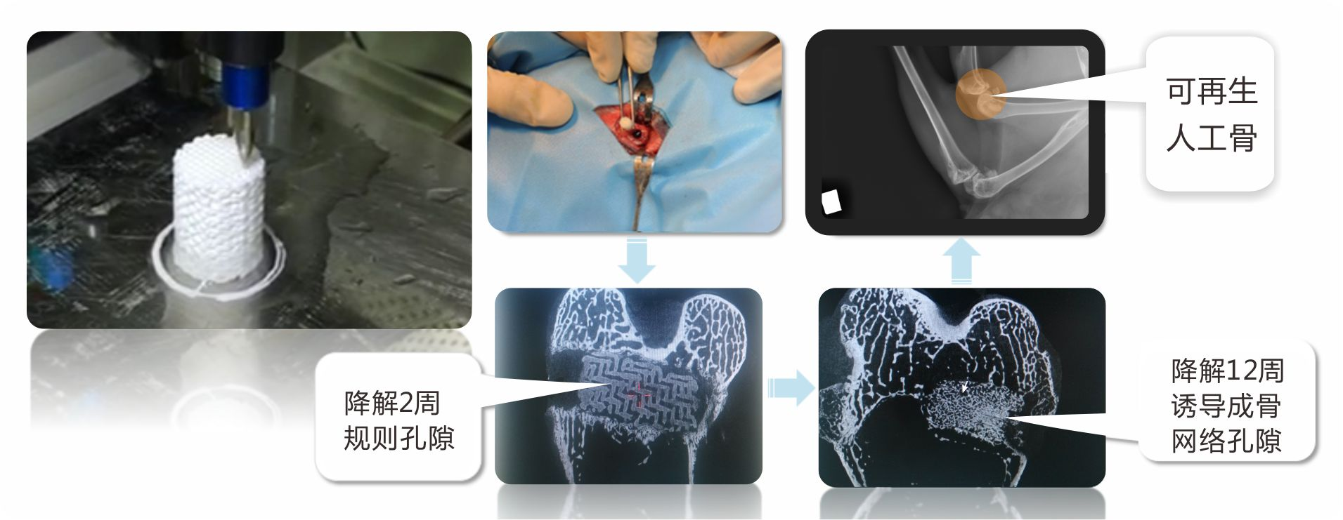 世界首例3D打印可降解人工骨修复长段骨缺损