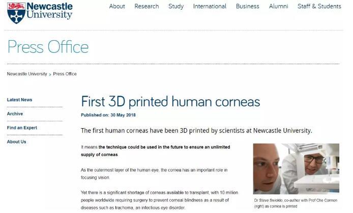 纽卡斯尔大学研发出3D打印人工角膜