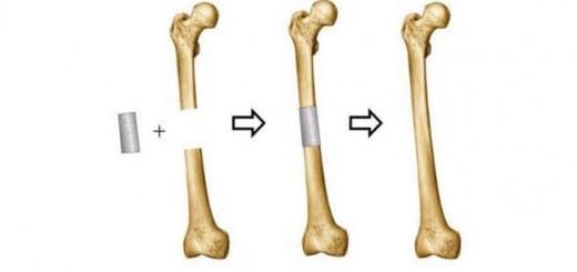 Tissue engineering_Bone