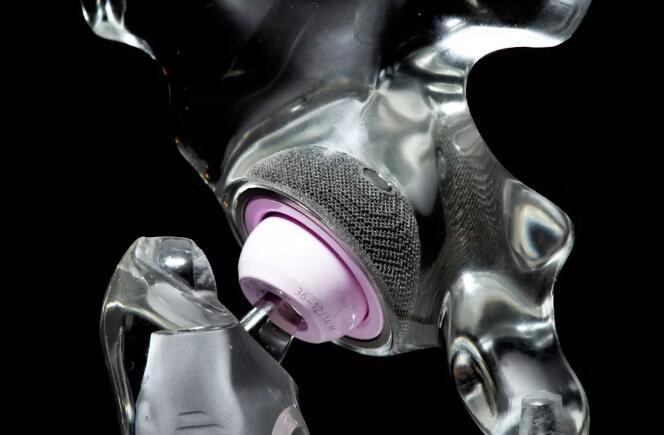 几十万个案例,3D打印髋臼杯走过十多年历史