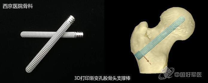 西京医院3D打印仿生钛合金股骨头支撑棒首次临床应用