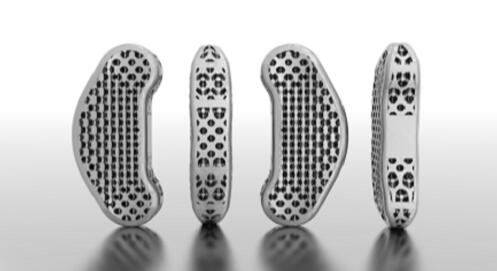 3dprinted_Spine implant
