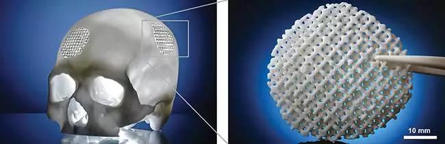 通过SLS技术3D打印可降解颅骨植入物?看德国Fraunhofer 如何验证其可行性