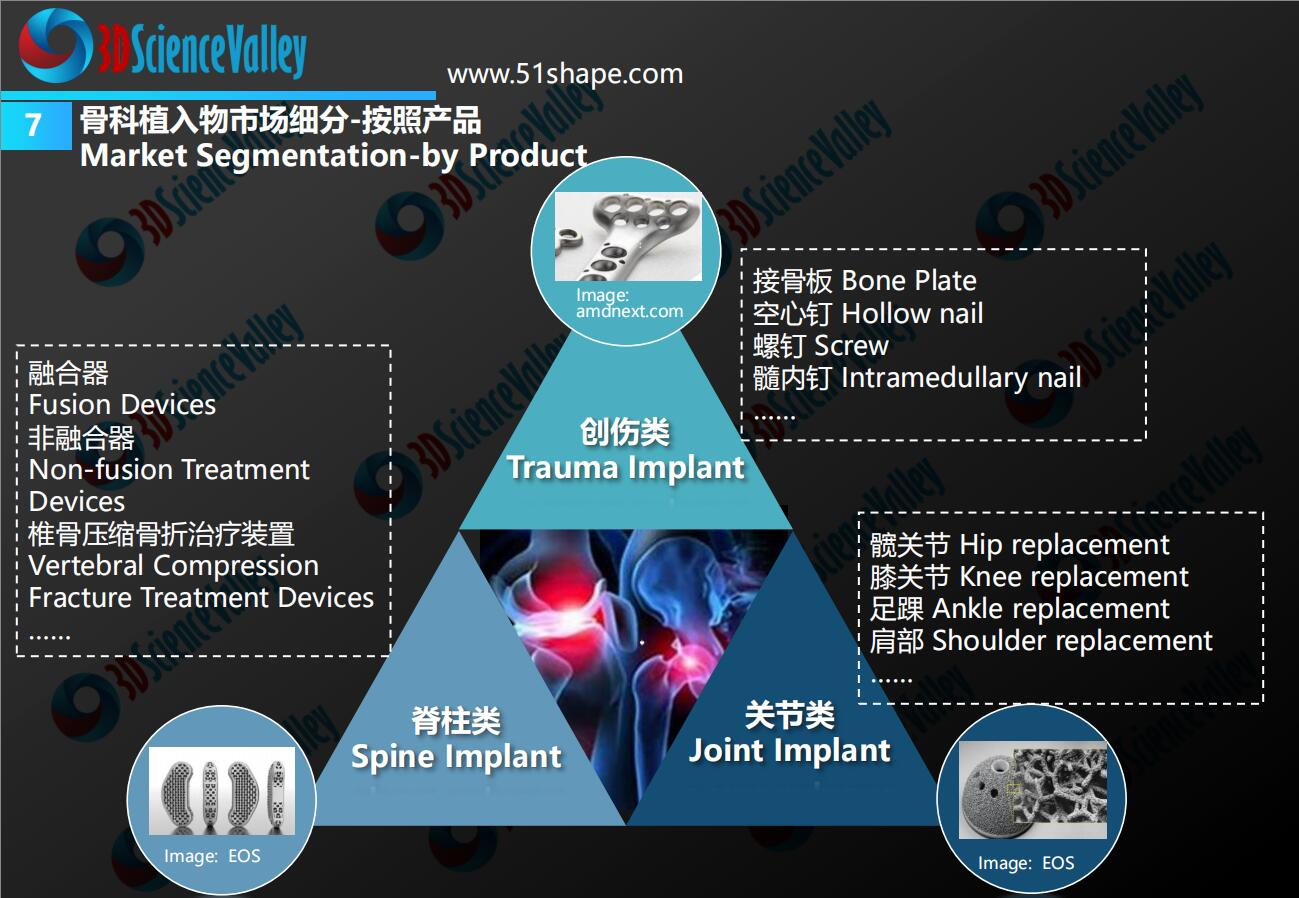 AM Orthopedic implant whitepaper 11