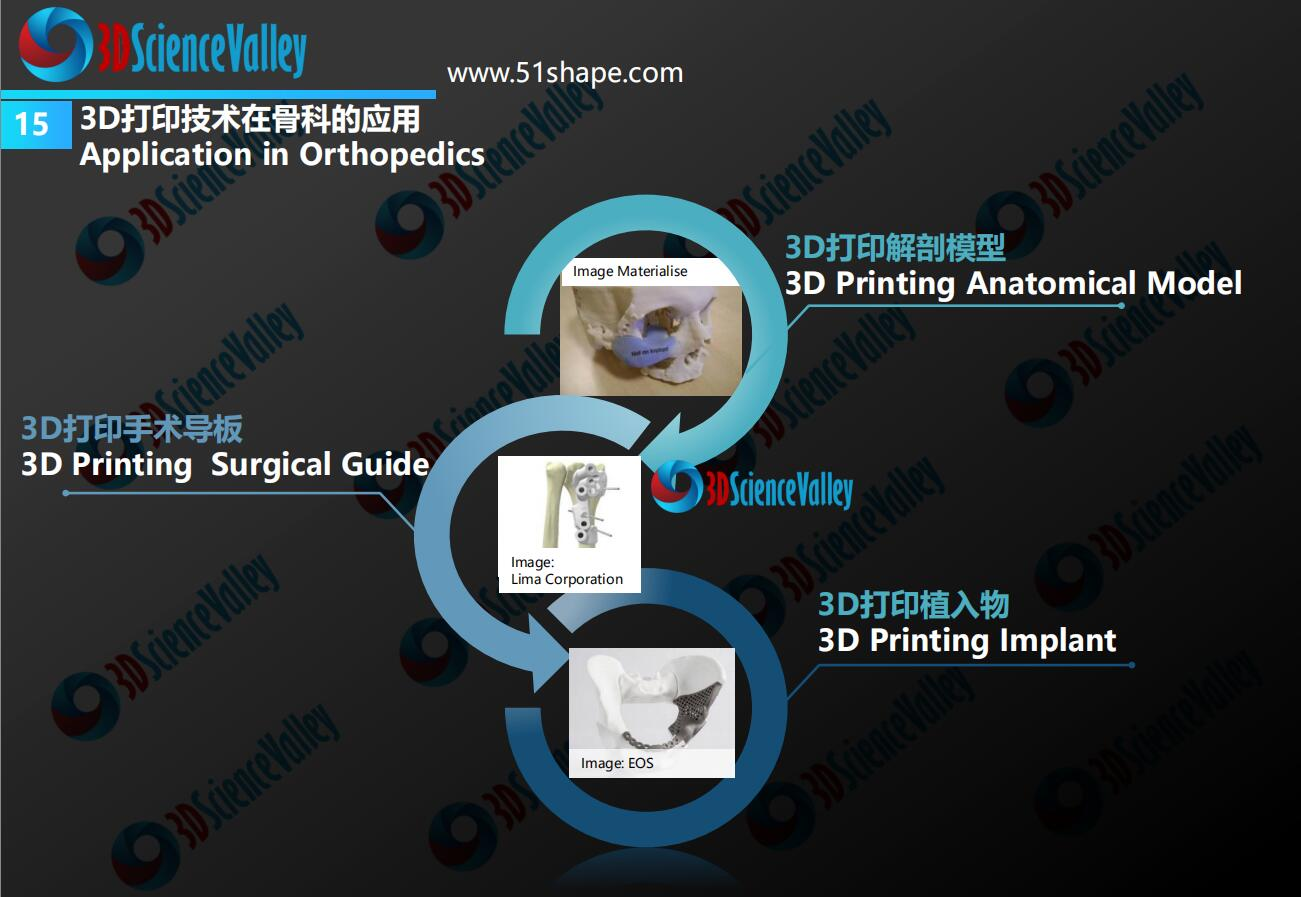 AM Orthopedic implant whitepaper 20