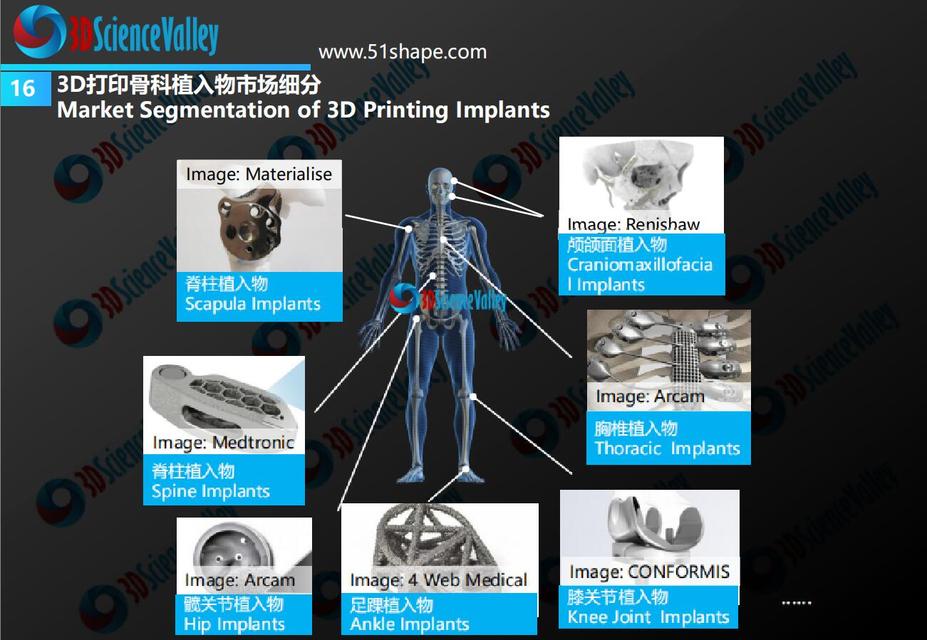 AM Orthopedic implant whitepaper 21