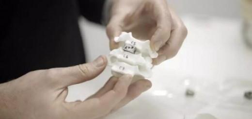 Implants_Spine
