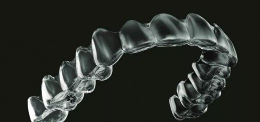 Dental_Invisalign_appliance