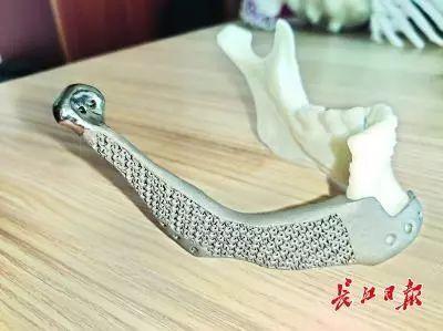 Wuhan_implant